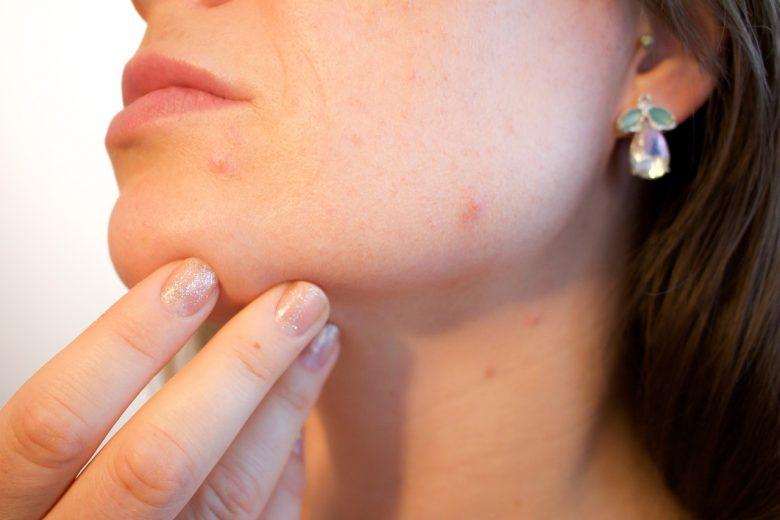 Facial Treatment Prahran Melbourne