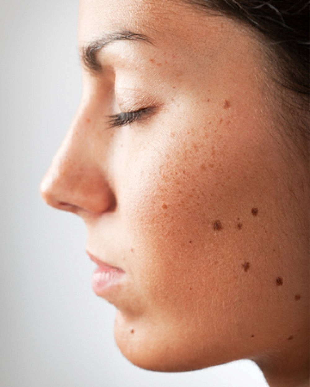 When Should You Consider Mole Removal