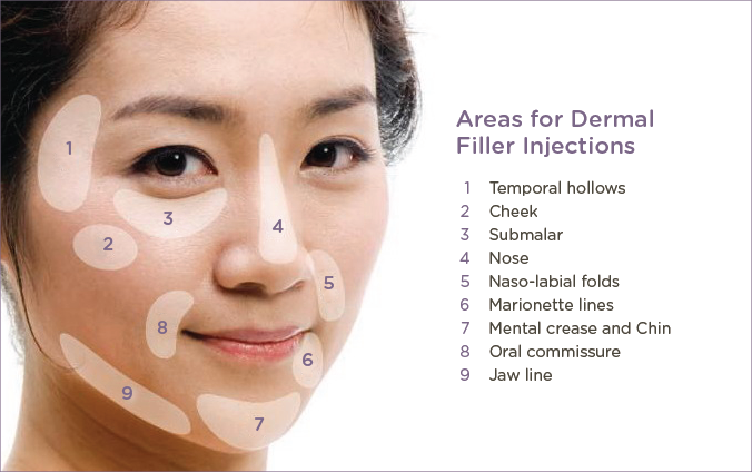 Rather than freaking out, be prepared in advance regarding the common side-effects you will face after dermal filler injections!