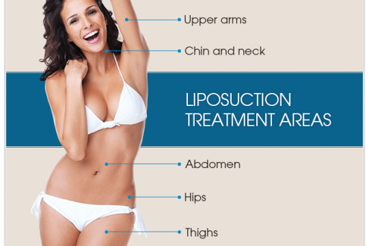 liposuction - Health Wealth Care