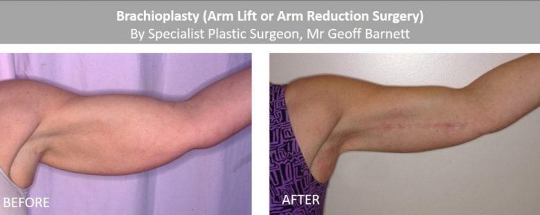 Important Tips To Prepare For Arm Lift Surgery - Health Wealth Care