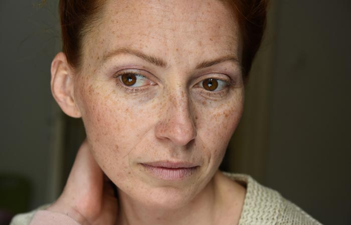 Common Myths About Skin Pigmentation Debunked